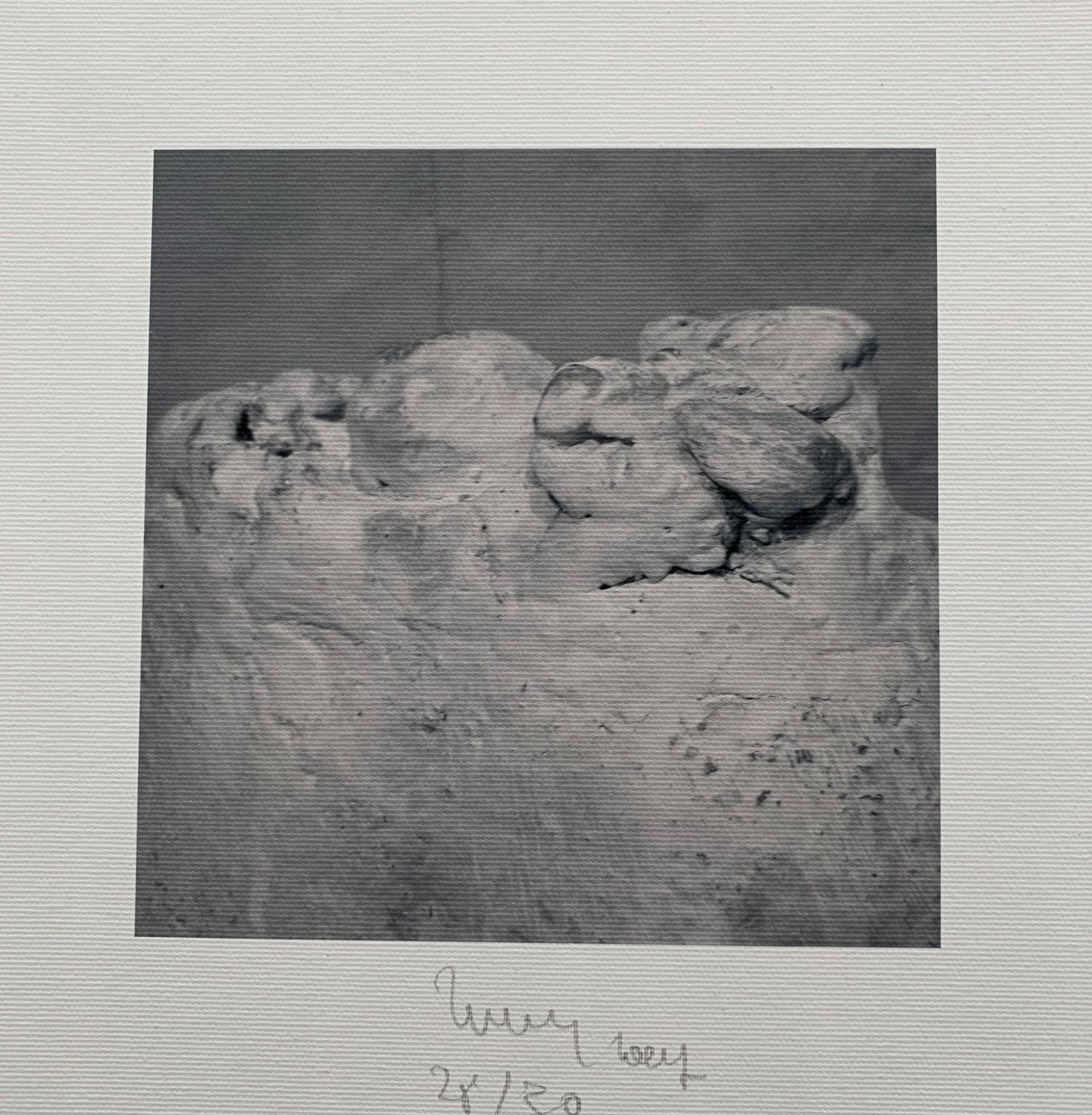Zahnweh Ernst Jahresgraphik